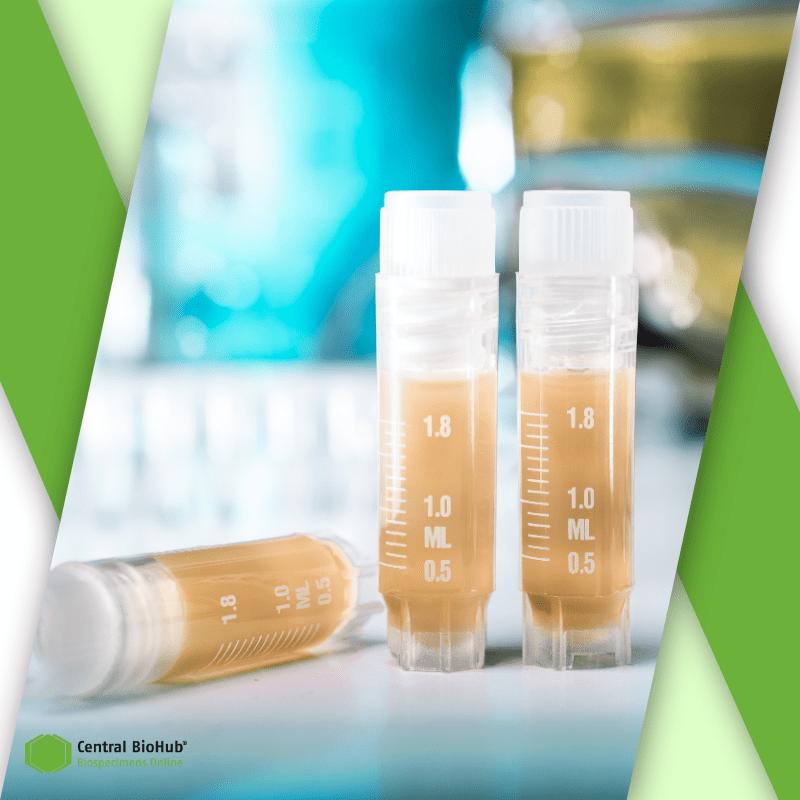 Three test tubes with blood plasma
